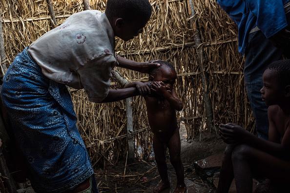 Не все граждане Малави имеют доступ к бытовым благам
